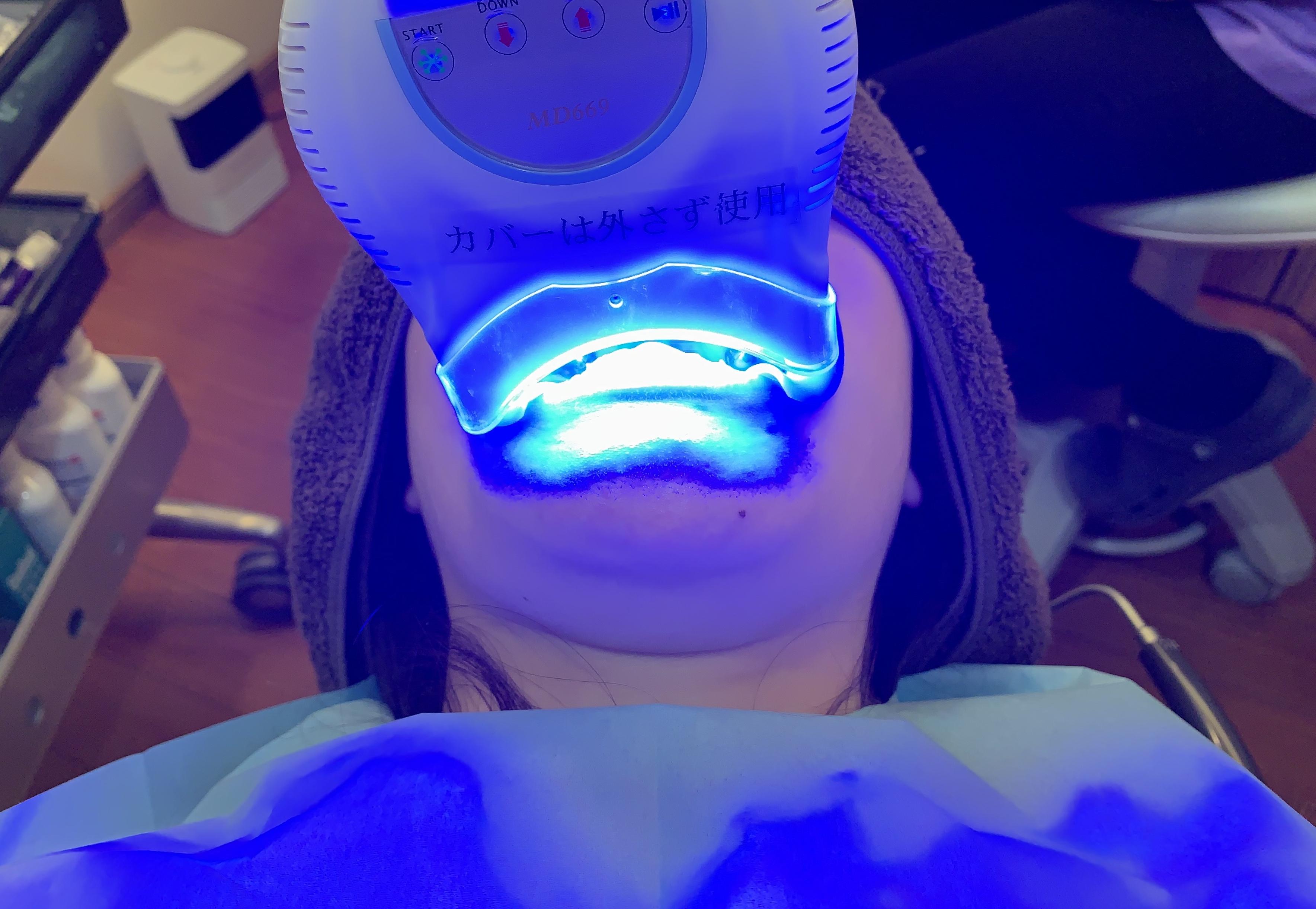 ホワイトニングの流れ*鴻池新田の歯医者 安部歯科医院のブログ