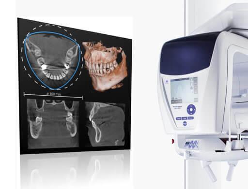 歯科用専用CT